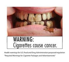 Teeth - cigarettes cause cancer